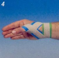 thumb_spica_taping_2.jpg